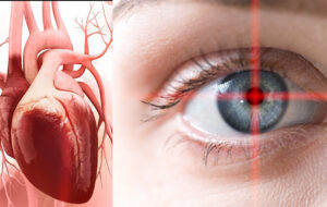تشخیص بیماری های قلبی از طریق چشم