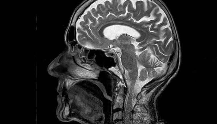 کشف جدید دانشمندان؛ چرا مغز انسان تا این حد بزرگ است؟